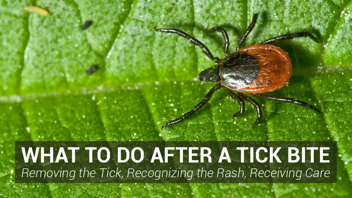 What to Do After a Tick Bite - Removing the Tick, Recognizing the Rash, Receiving Care