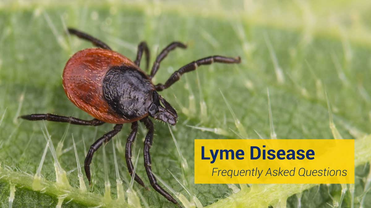 Lyme Disease Frequently Asked Questions : Johns Hopkins Lyme