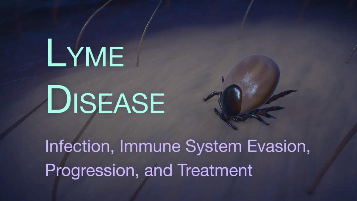 Lyme Disease Animation:  Infection, Immune System Evasion, & Progression