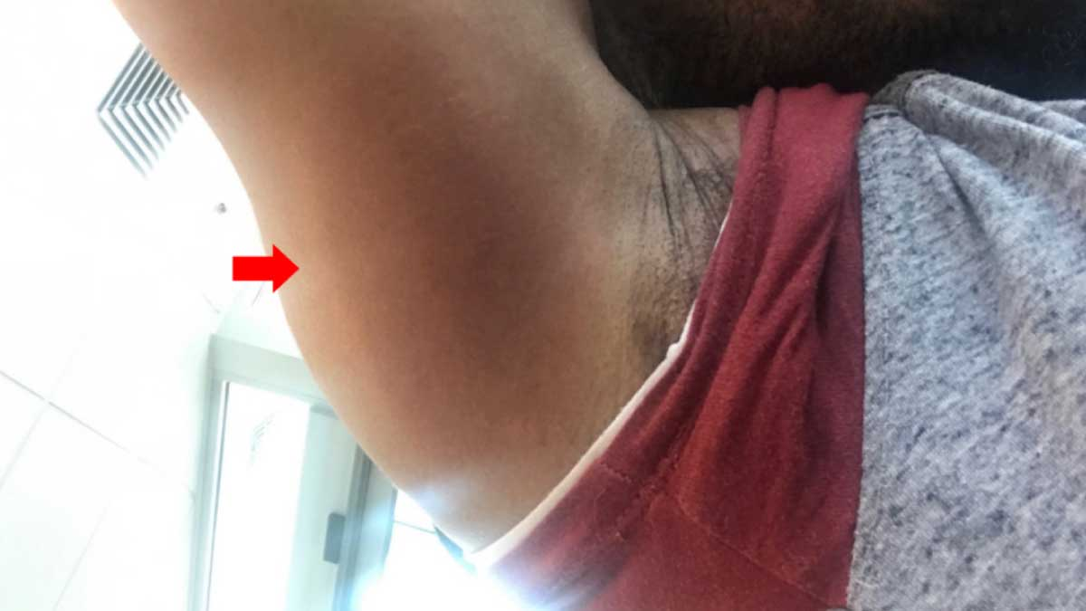 Lyme Rash Near Armpit on African-American Man