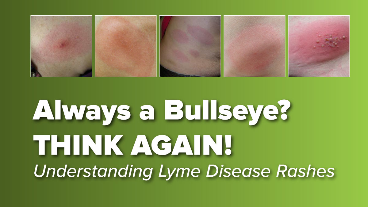 Think the Lyme Disease Rash is Always a Bullseye? THINK AGAIN!