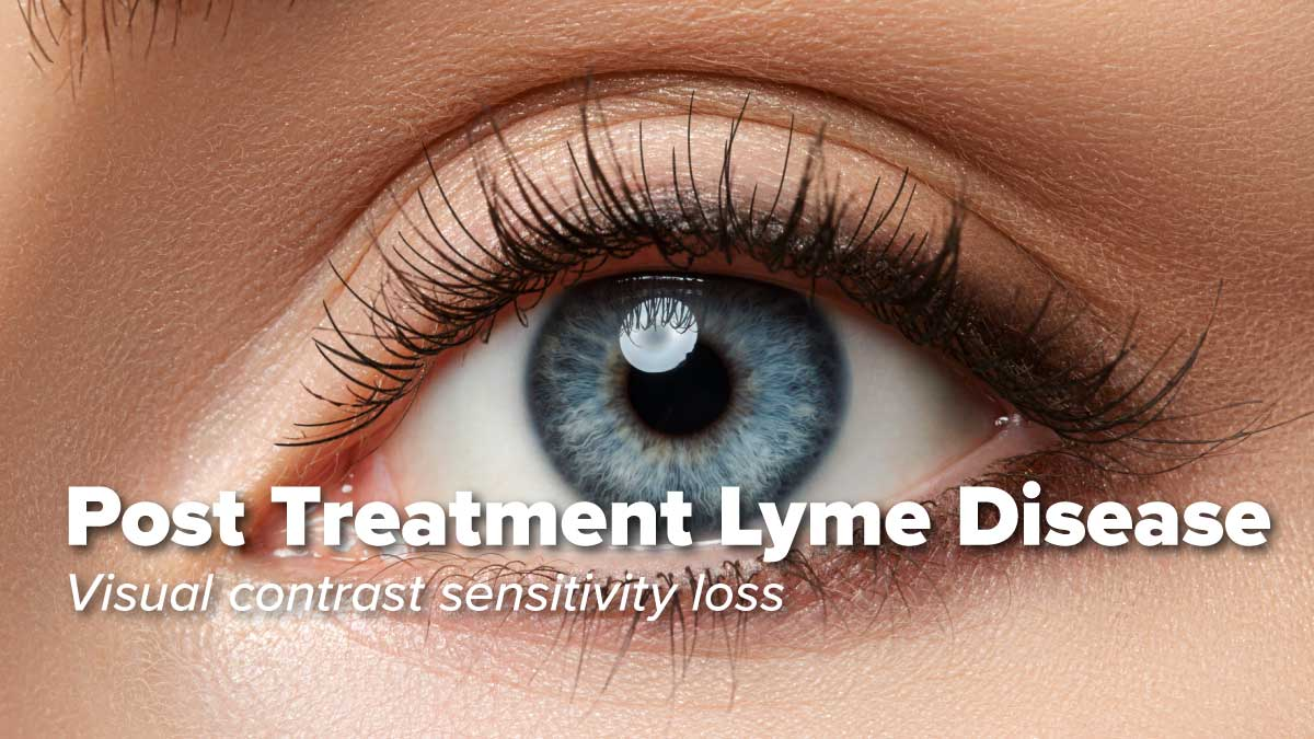 Visual contrast sensitivity loss in patients with post treatment Lyme disease