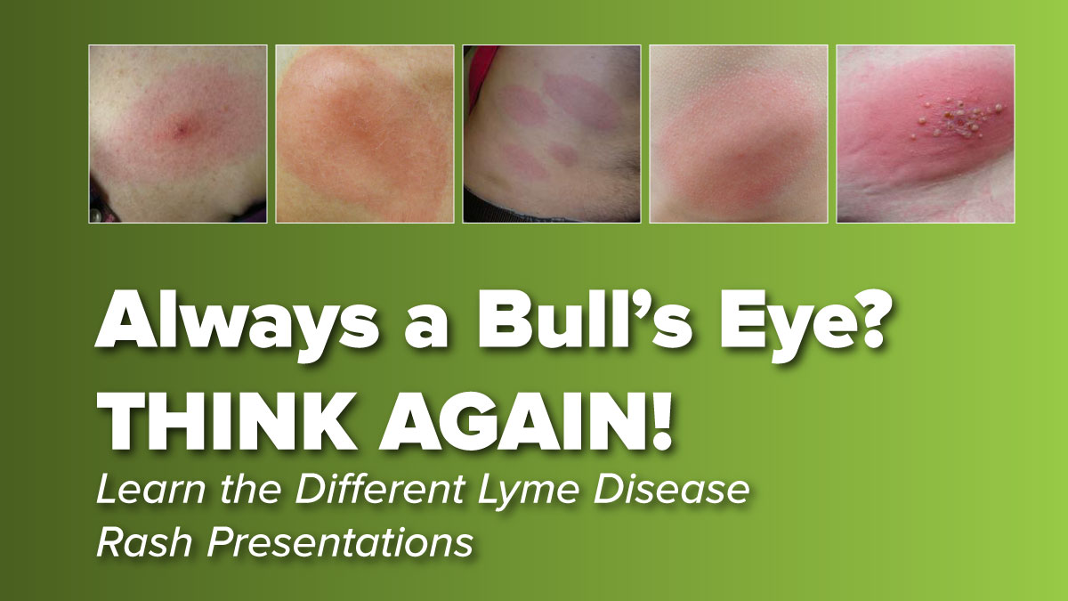 Lyme Disease Rash Presentations May Not Be What You Think